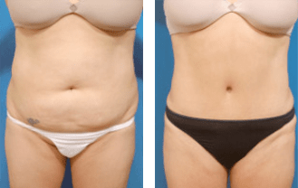 Liposuction Beverly Hills - Dr. Brent