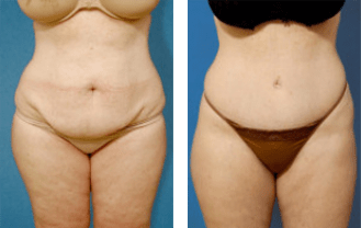 tummy tuck surgeon beverly hills dr. brent moelleken