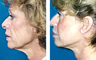 necklace neck lift beverly hills