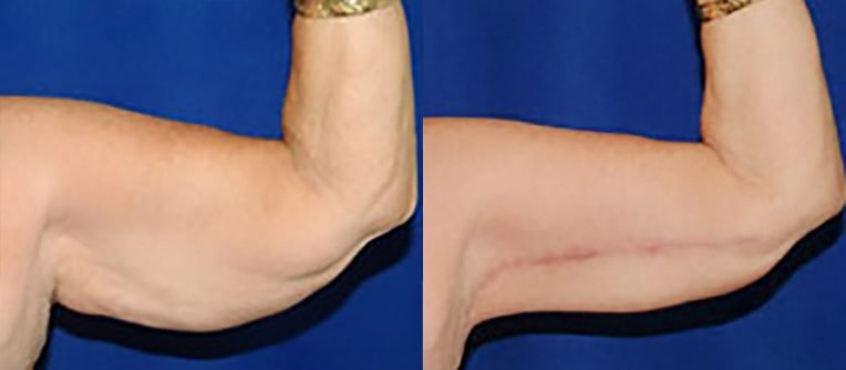 Arm lift before and after patient 02 case 3025 closeup view