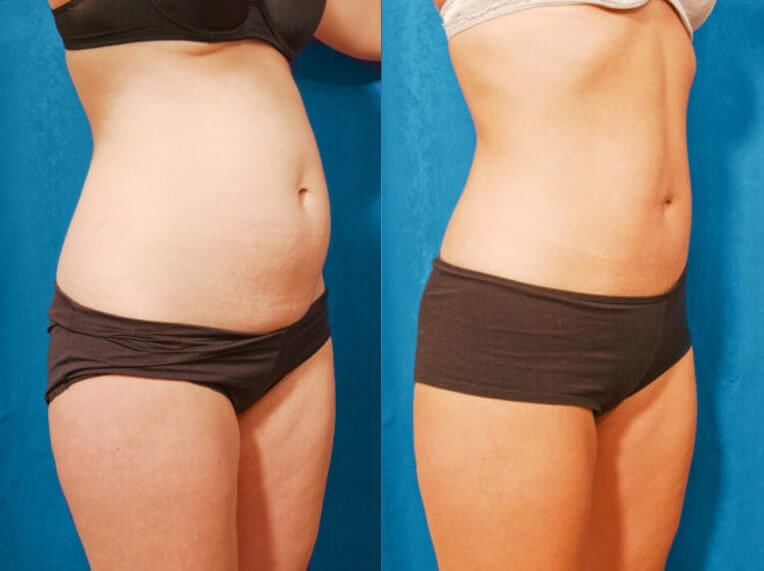 Hybrid tummy tuck before and after patient 02 case 3035 side view 2