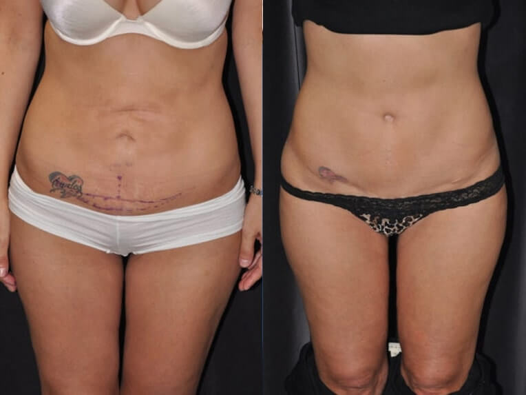 Hybrid tummy tuck before and after patient 05 case 3055 overview