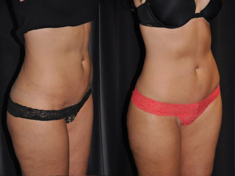 Hybrid tummy tuck before and after patient 05 case 3055 side view 2