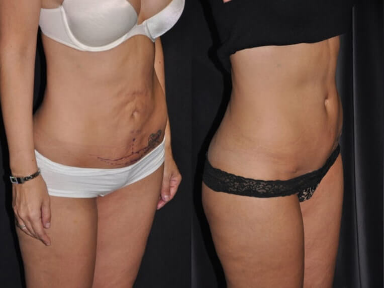 Hybrid tummy tuck before and after patient 05 case 3055 side view