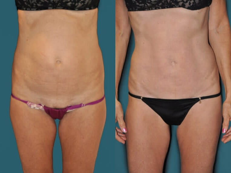 Hybrid tummy tuck before and after patient 06 case 3065 overview