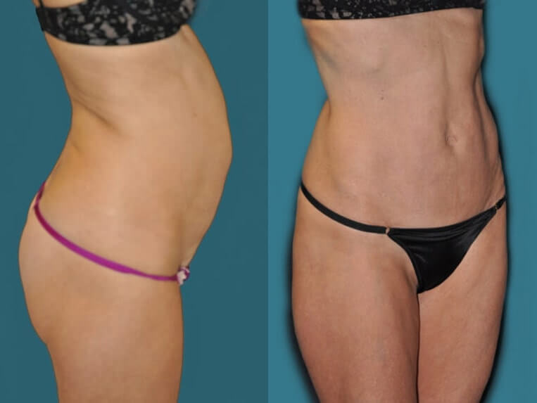Hybrid tummy tuck before and after patient 06 case 3065 side view 2