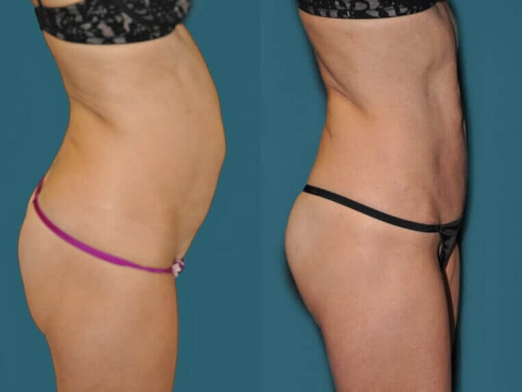 Hybrid tummy tuck before and after patient 06 case 3065 side view