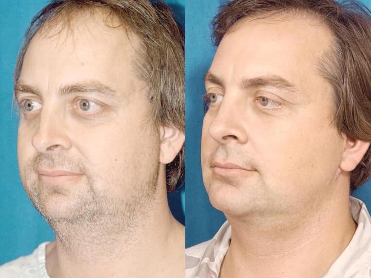 Browlift before and after patient 01 case 3307 side view