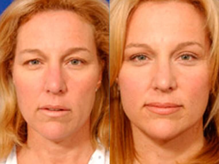 Browlift before and after patient 02 case 3301 front view