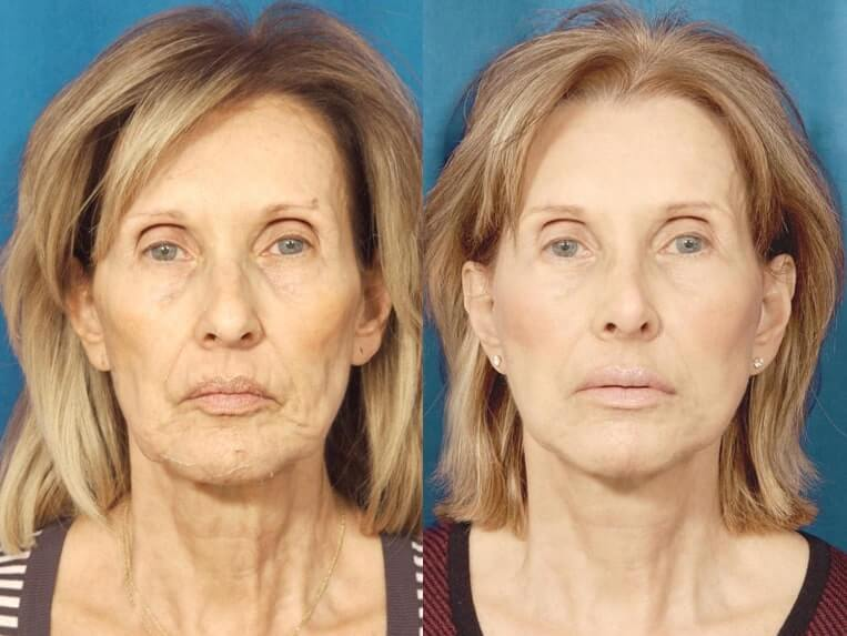 Browlift before and after patient 03 case 3313 front view