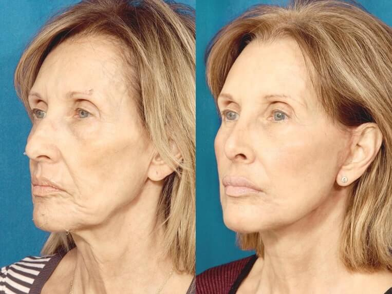 Browlift before and after patient 03 case 3313 side view