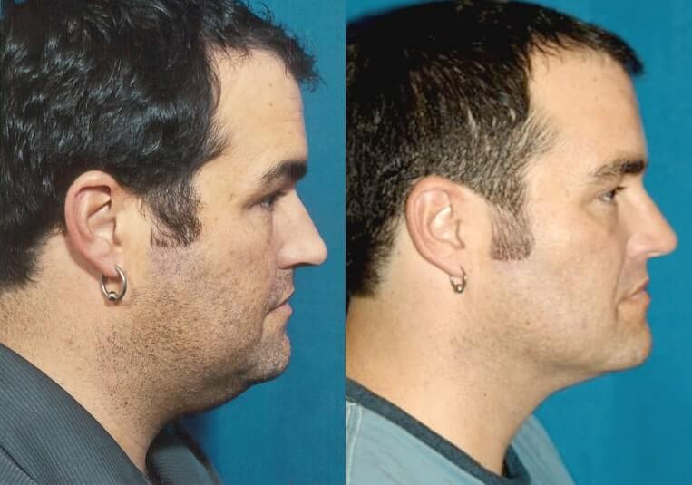 Buccal Fat Liposuction before and after patient 01 case 3341 side view