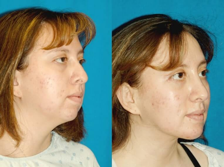 Buccal Fat Liposuction before and after patient 02 case 3337 side view