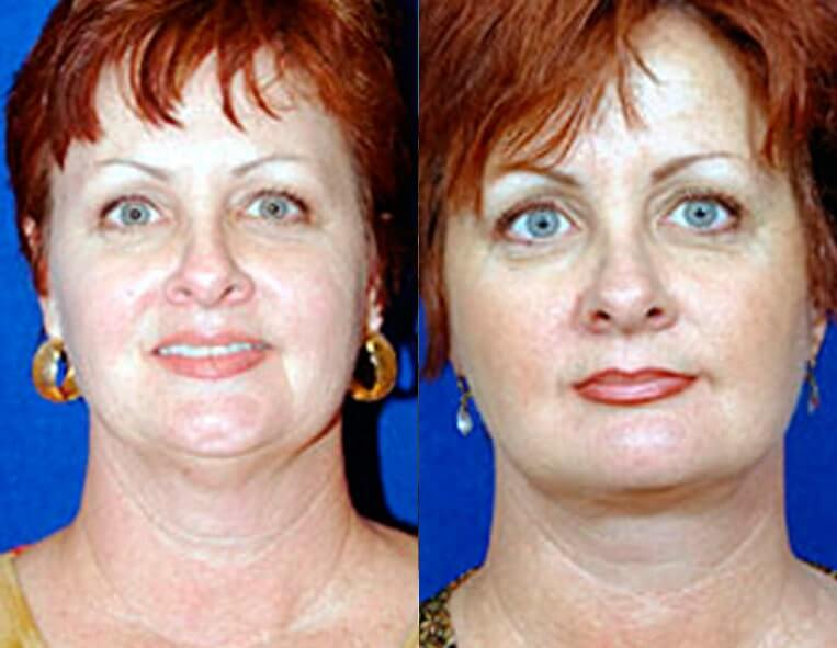 Buccal Fat Liposuction before and after patient 03 case 3331 front view
