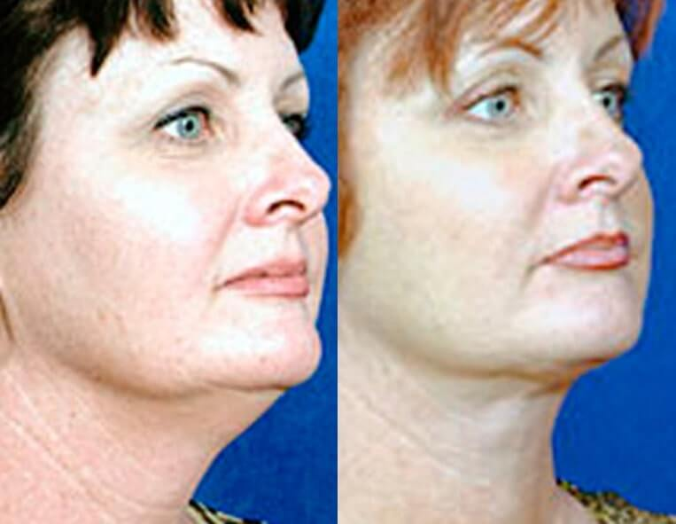 Buccal Fat Liposuction before and after patient 03 case 3331 side view