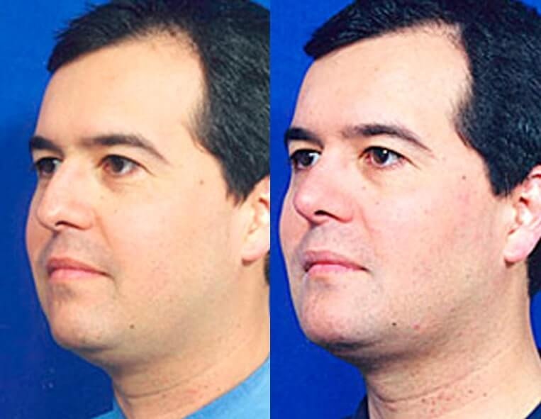 Buccal Fat Liposuction before and after patient 04 case 3131 side view