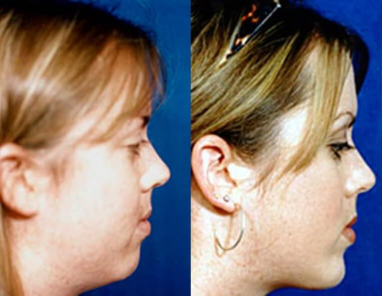 Buccal Fat Liposuction before and after patient 05 case 3019 side view