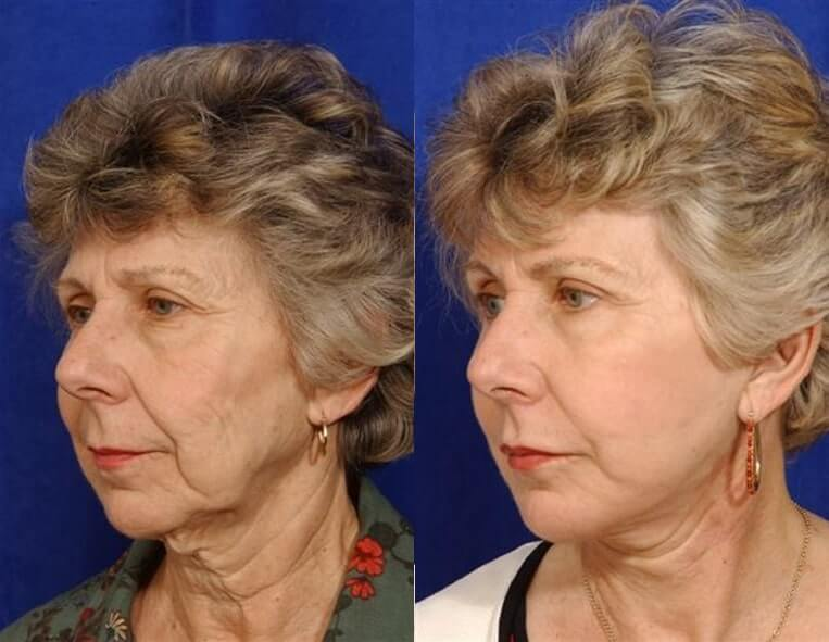 Cheeklift before and after patient 01 case 3347 side view