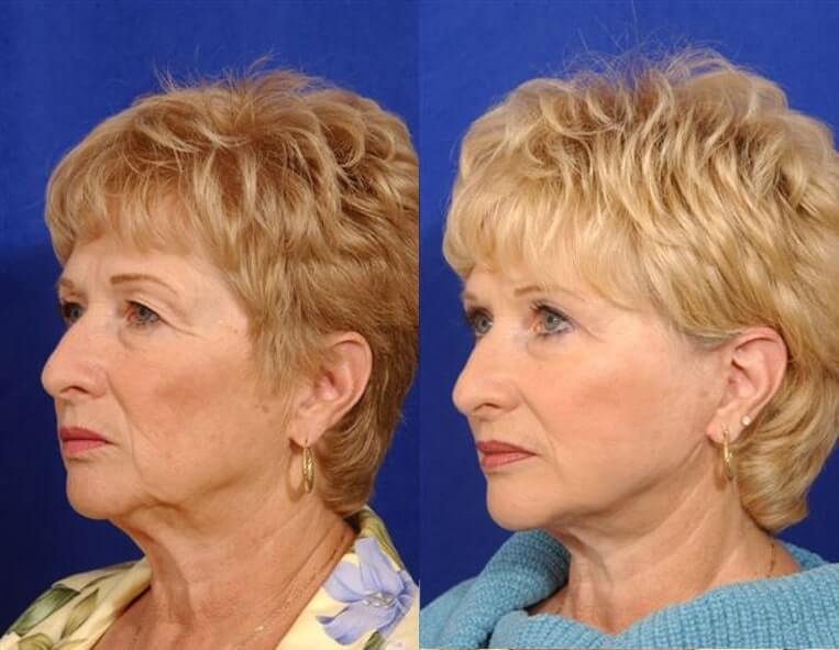 Cheeklift before and after patient 02 case 3353 side view