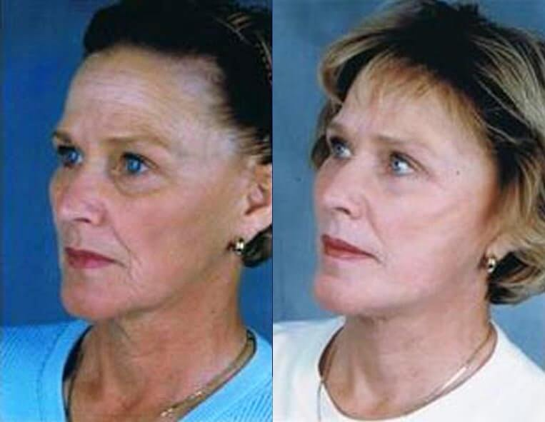 Cheeklift before and after patient 03 case 3353 side view