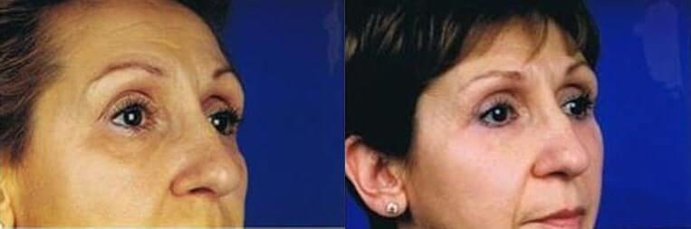 Cheeklift before and after patient 04 case 3363 side view