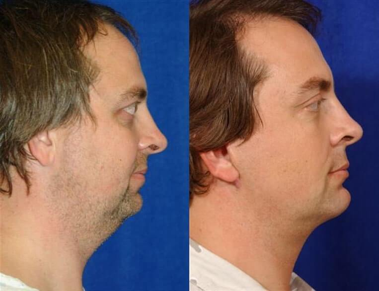 Cheeklift before and after patient 05 case 3367 side view