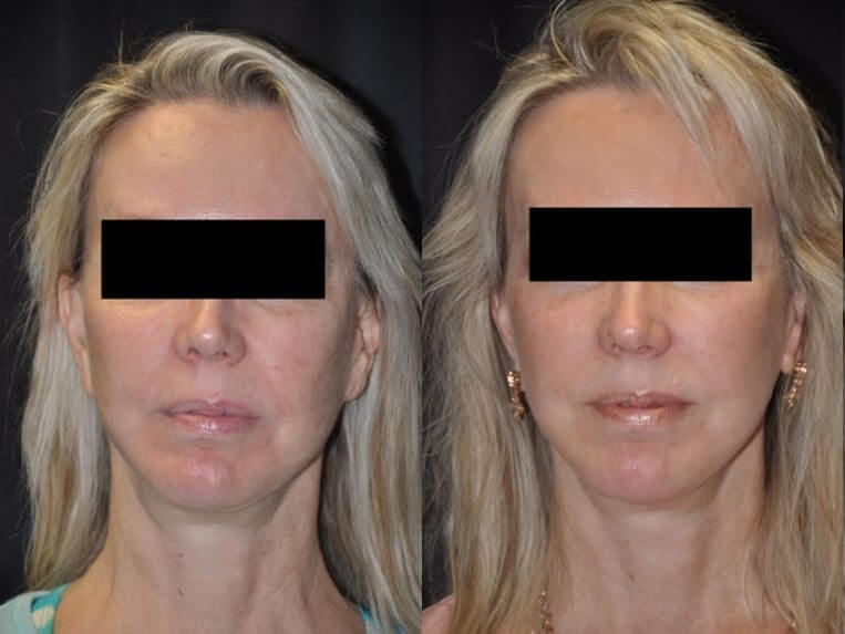 Cheeklift before and after patient 08 case 3381 front view