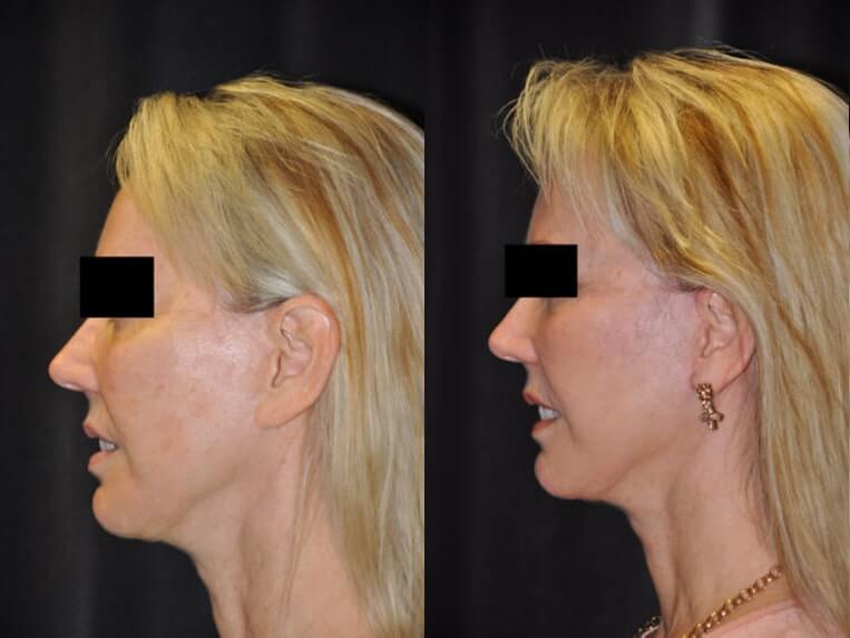 Cheeklift before and after patient 08 case 3381 side view 2