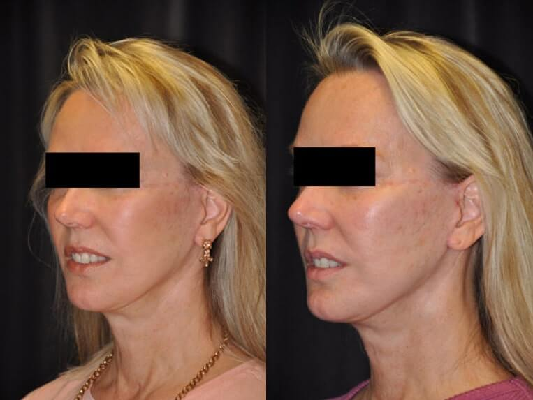 Cheeklift before and after patient 08 case 3381 side view