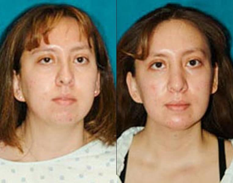 Chin Implants before and after patient 01 case 3393 front view