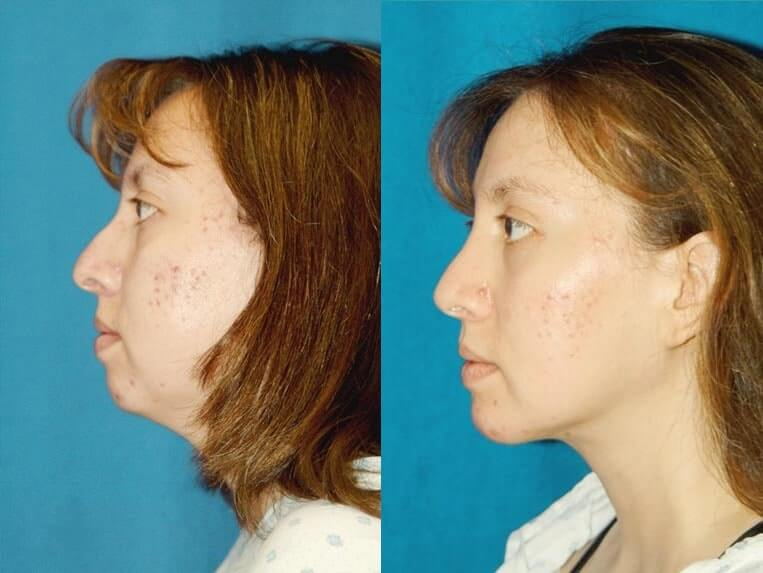 Chin Implants before and after patient 01 case 3393 side view