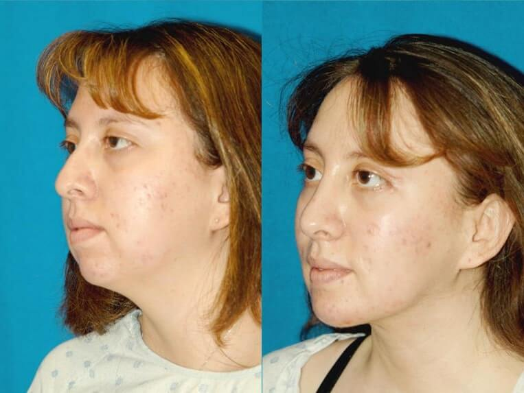 Chin Implants before and after patient 01 case 3393 side view 2