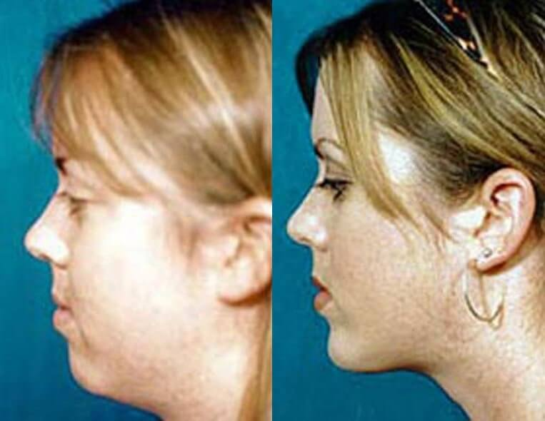 Chin Implants before and after patient 02 case 3401 side view