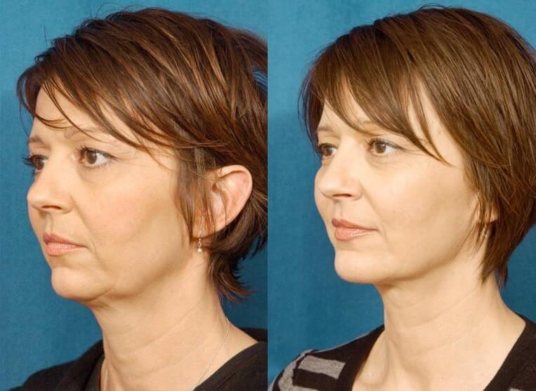 Chin Implants before and after patient 03 case 3407 side view 2