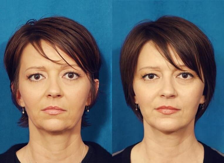 Chin Implants before and after patient 03 case 3407 front view