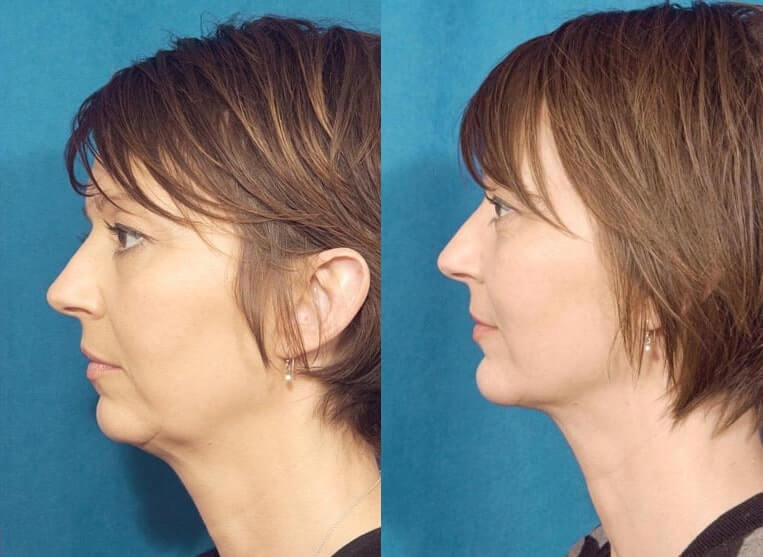 Chin Implants before and after patient 03 case 3407 side view