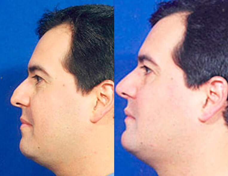 Chin Implants before and after patient 04 case 3415 side view
