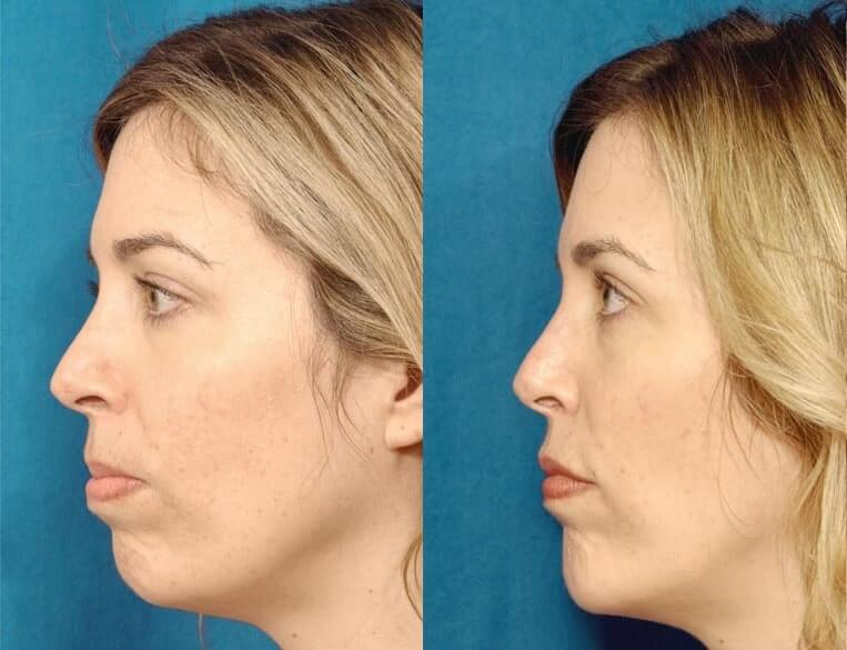 Chin Implants before and after patient 05 case 3421 side view