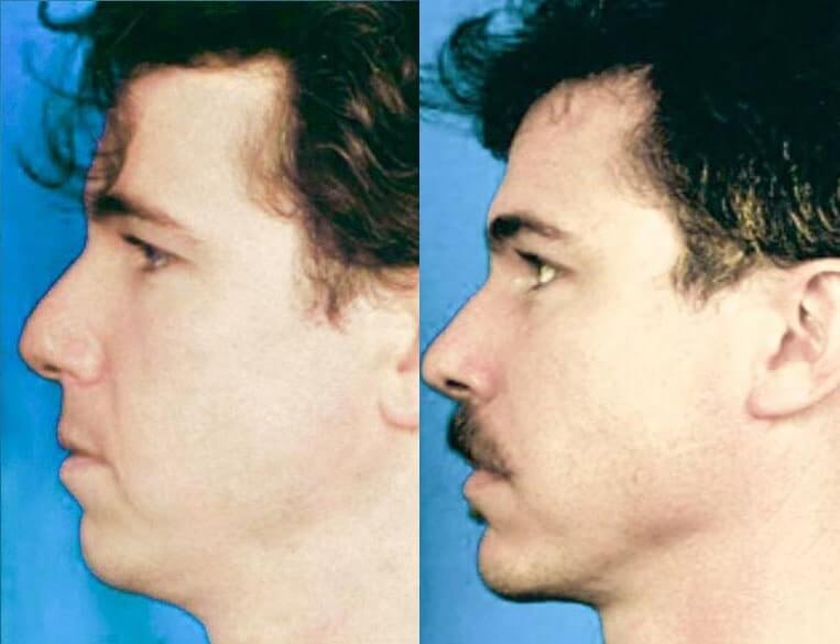 Chin Implants before and after patient 06 case 3425 side view