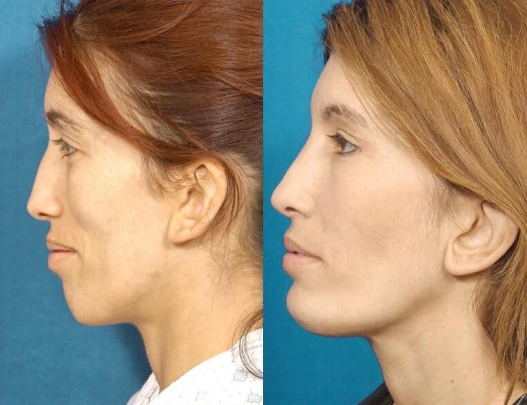 Chin Implants before and after patient 07 case 3431 side view