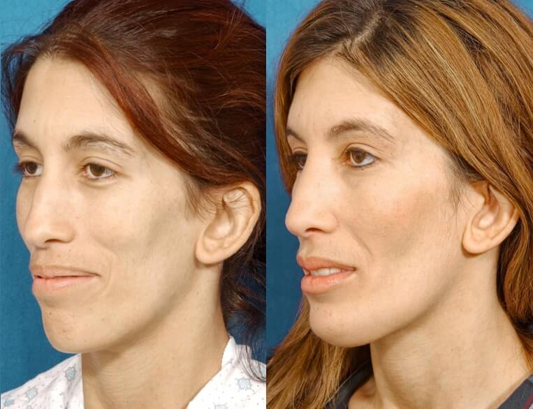 Chin Implants before and after patient 07 case 3431 side view 2