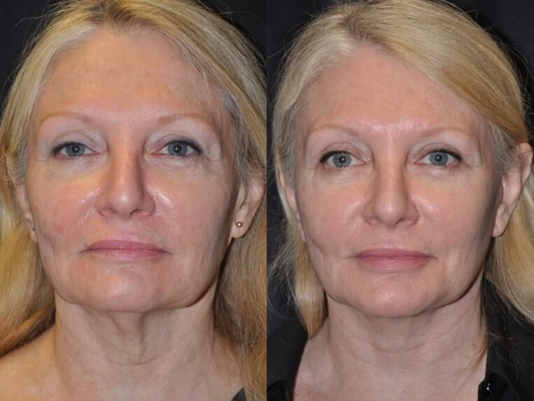 Eyelid Rejuvenation before and after patient 1 case 5192 front view