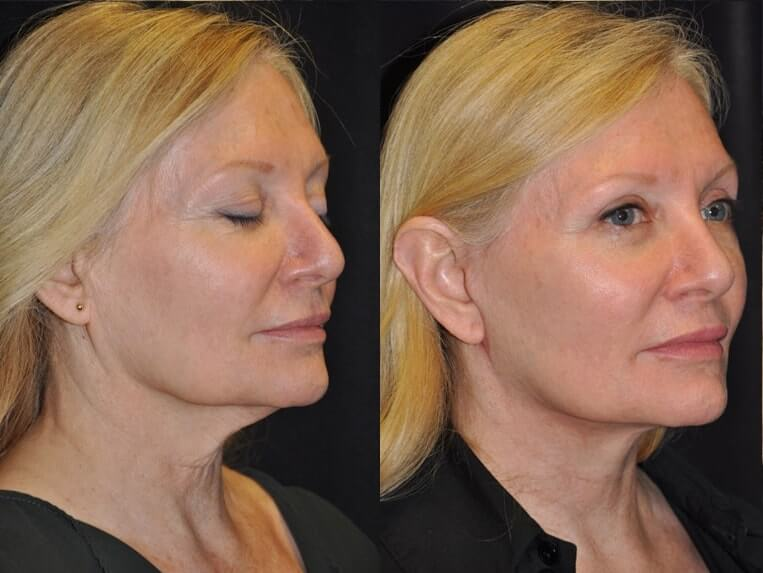 Eyelid Rejuvenation before and after patient 1 case 5192 side view