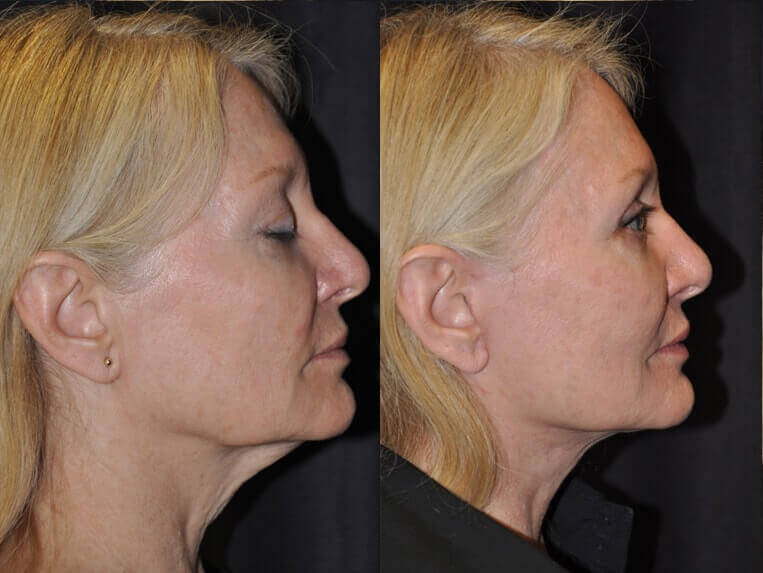 Eyelid Rejuvenation before and after patient 1 case 5192 side view 2