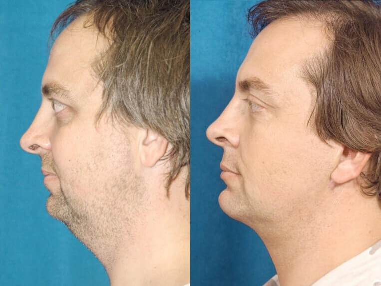 Eyelid Rejuvenation before and after patient 2 case 3439 side view