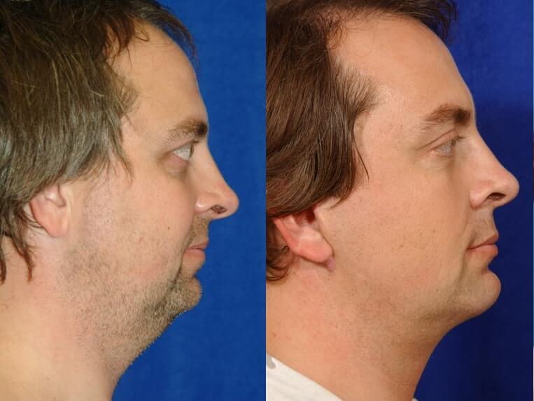 Eyelid Rejuvenation before and after patient 2 case 3439 side view 2