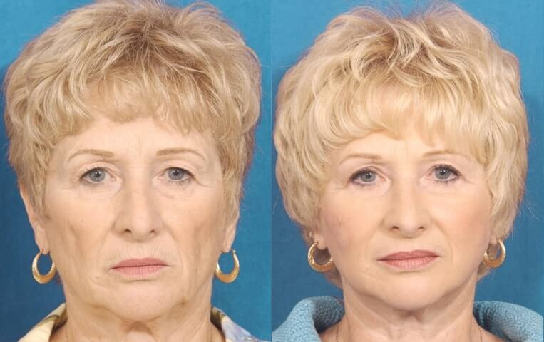 Eyelid Rejuvenation before and after patient 3 case 3445 front view