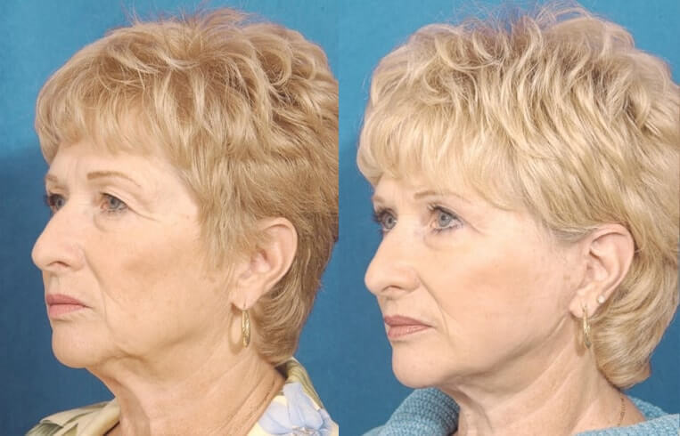 Eyelid Rejuvenation before and after patient 3 case 3445 side view