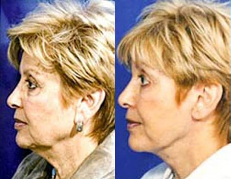 Eyelid Rejuvenation before and after patient 4 case 3451 front view