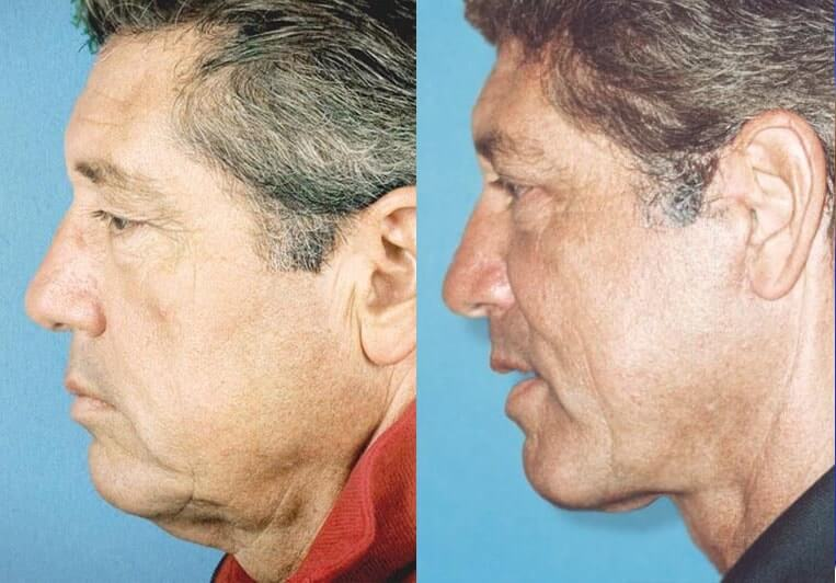 Eyelid Rejuvenation before and after patient 5 case 3457 side view